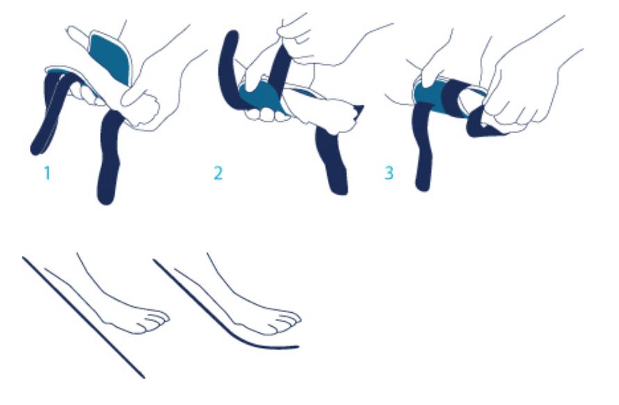 Balto-BT-Splint-Drawing